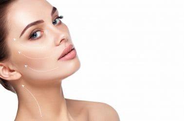 vrouw met lijnen op het gezicht die behandeld gaan worden met coolifting