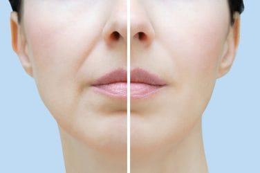 Vrouw heeft een behandeling ondergaan om haar neus-lippenplooi minder te laten opvallen