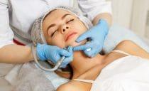 microdermabrasie om de hoornlaag te verdunnen bij hormonale acne.